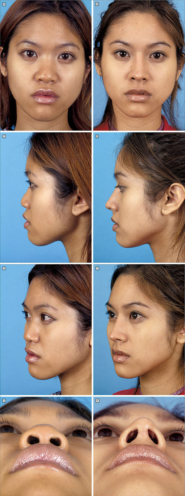 Major rhinoplasty performed on an Asian female.