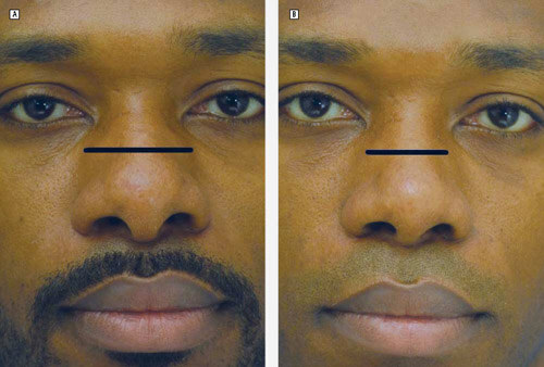 African-American rhinoplasty patient.