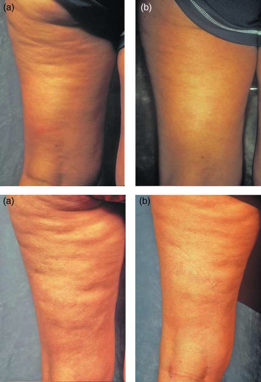 Treatment of cellulite using intense pulsed-light heating and topical application of retinyl palmitate.