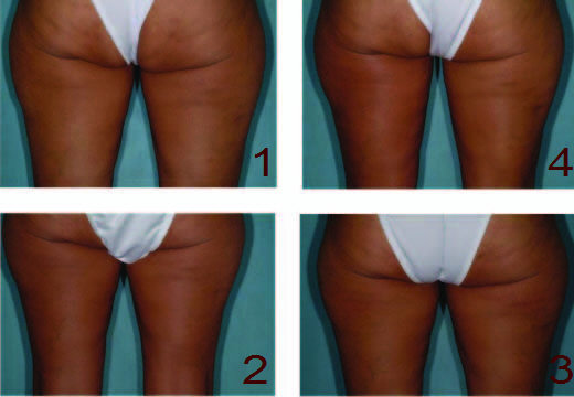 Treatment of cellulite using radiofrequency heating treatment.