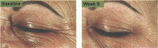 Eye wrinkles improved by copper zinc malonate.