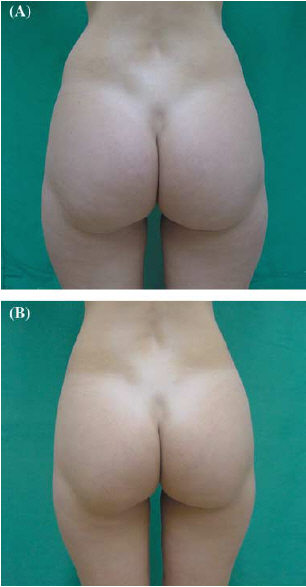 Laser-assisted lipolysis of the buttocks region of a woman.