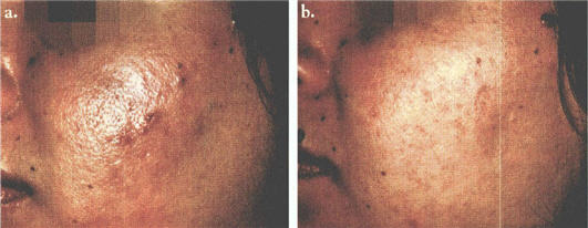 Before and after treatment of acne by a photopneumatic device.