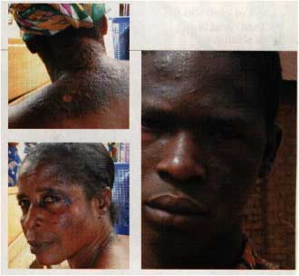 Skin lightening cream-induced damage