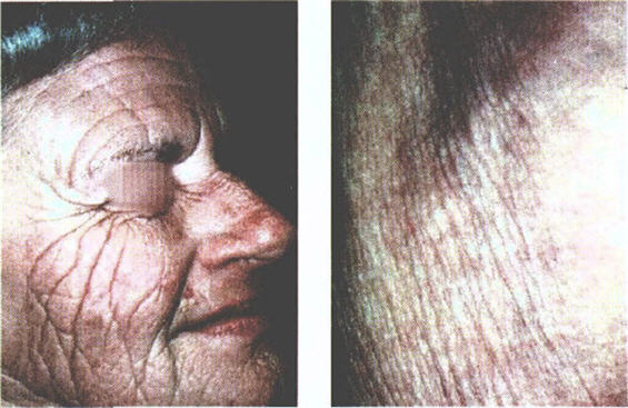 Skin aging caused by the sun contrasted with innate aging.