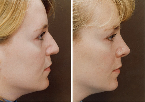 Inadequate nose tip projection