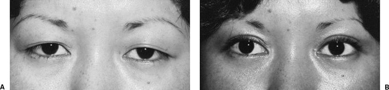 double eyelid surgery in Asian woman