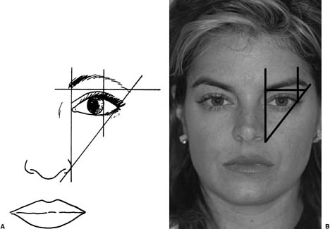 The &ldquo;ideal&rdquo; brow position.