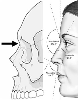The infraglabellar notch and the profile view of the average North American white female