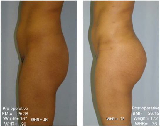 Pre- and post-operative pictures of a woman that underwent micro-fat grafting surgery.