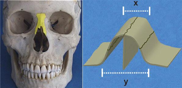 Nasal bones and bony nose vault