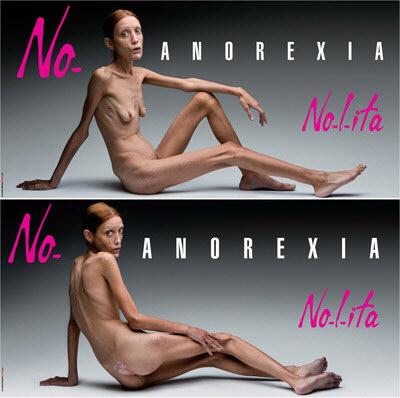 No-l-ita anorexia ad