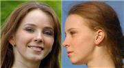 Nordic nose