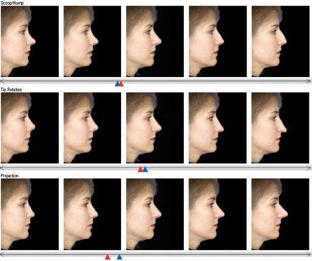 Nose profile manipulation and attractiveness.