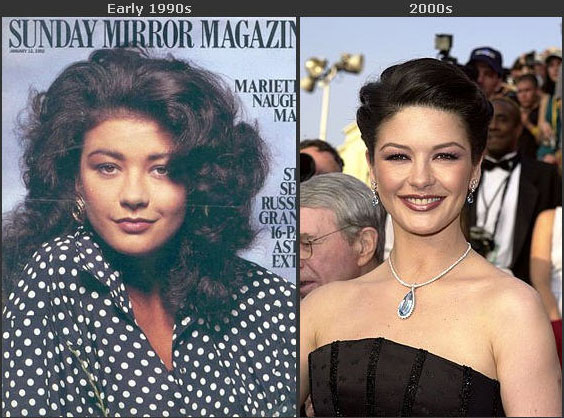 Catherine Zeta Jones' facial transformation.
