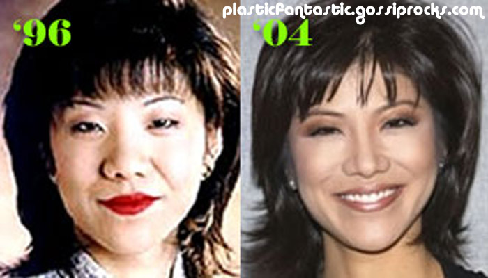 Julie Chen nose job.