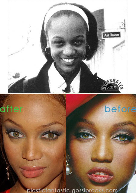 Tyra Banks nose job.